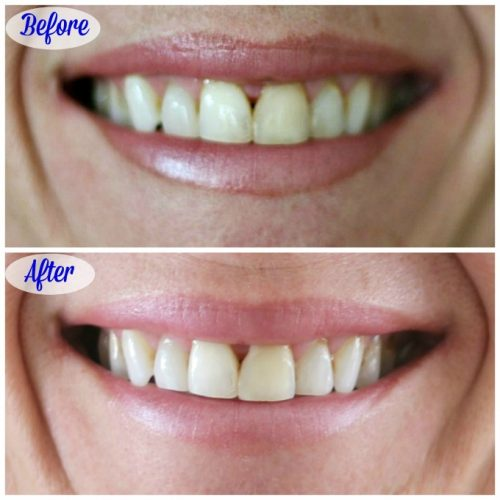You can easily see the difference Smile Brilliant makes in these before and after pictures