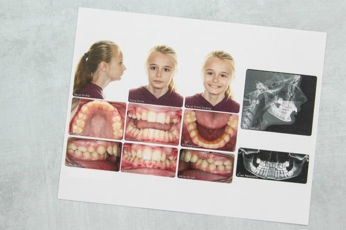 Ashling's Orthodontic Images
