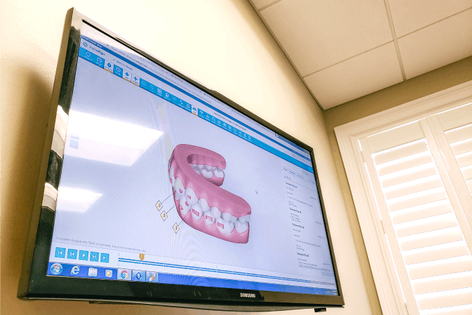 Invisalign 3d model screen